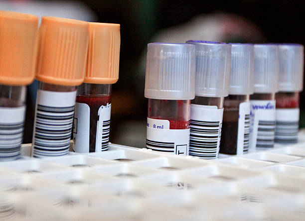 Blood tubes in laboratory stock photo