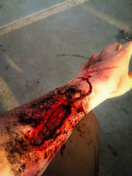 bloody arm cut - open wounds stock photos and pictures