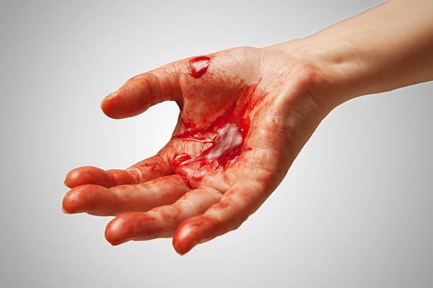 Bloody hand foto
