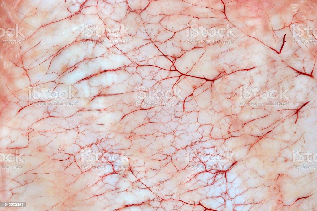 Bloody inflammatory capillaries on the skin stock photo