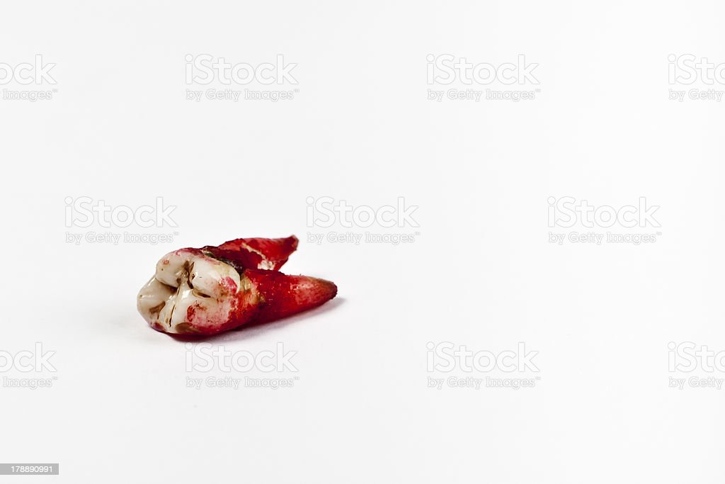 Bloody molar laying on a plain white background stock photo