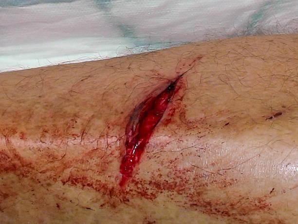 bloody Plaie - Photo