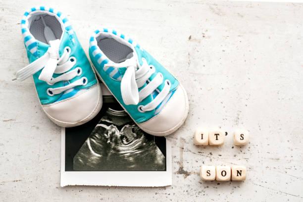 blaue baby-booties mit einem ultraschallbild für 20 wochen auf einem hellen hintergrund. inschrift ist es sohn. - babyschuh stock-fotos und bilder