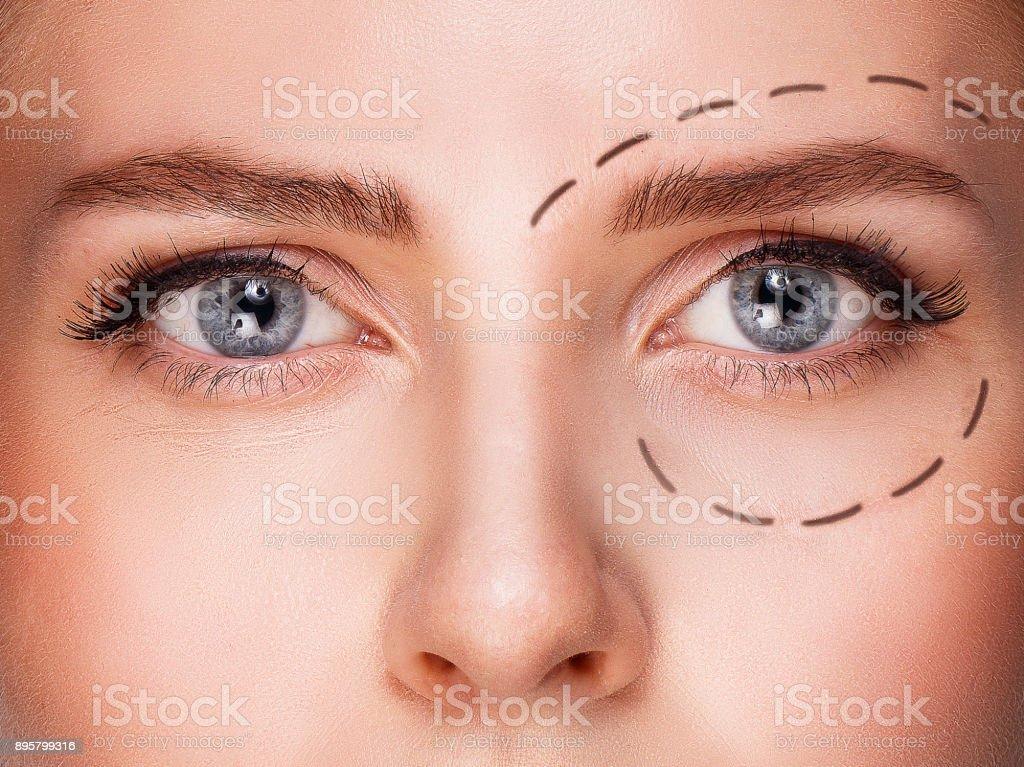 Blue eyed Frau mit Zeichnung unter Augen vor Plastische Chirurgie – Foto