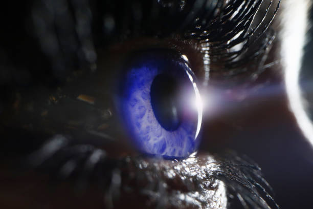 blue female eye on surgery clinic exam closeup - detachment stock pictures, royalty-free photos & images