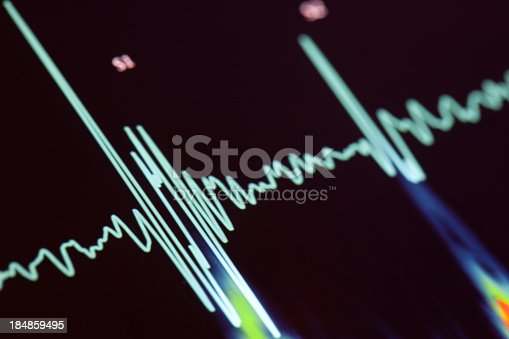 Heartbeat on the LCD screen