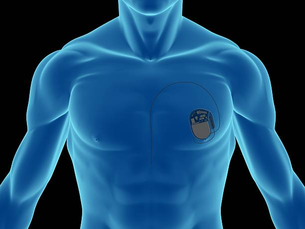 Blue illustration of a man's chest showing pacemaker X-ray of a man, showing a pacemaker (for heart) on chest, on front view, great to be used in medicine works and health. Isolated on a black background.  pacemaker stock pictures, royalty-free photos & images