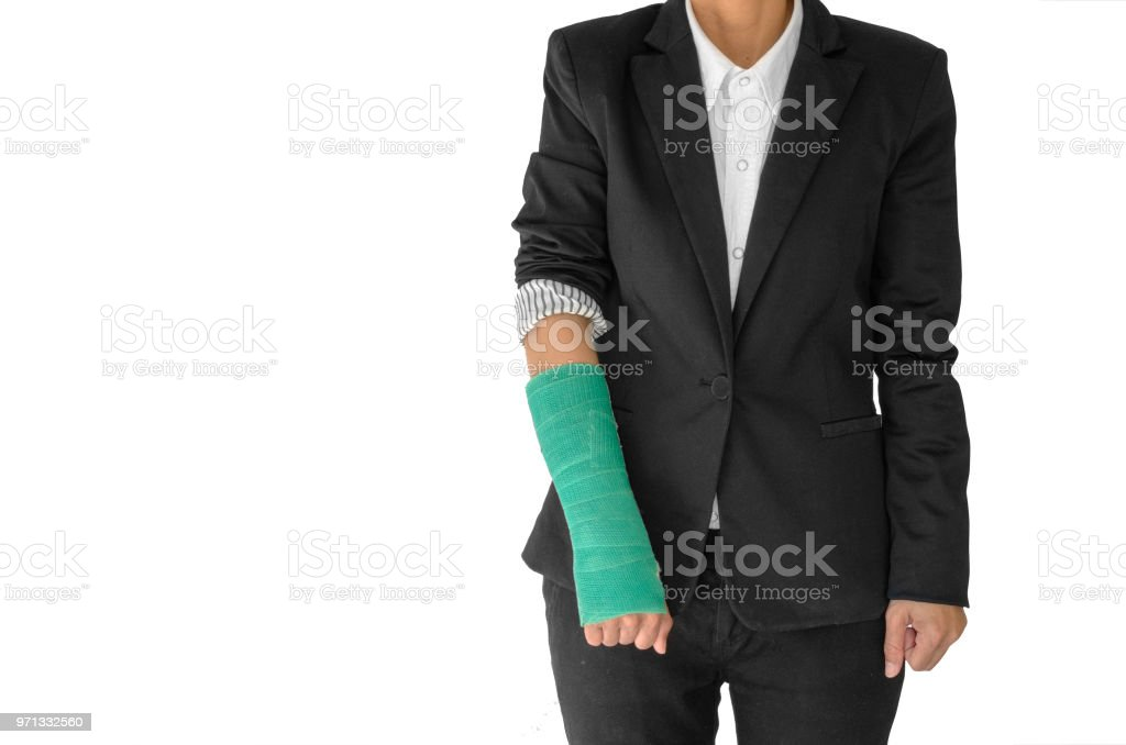 Body injury concept, injured businesswoman with green cast on hand and arm  and wearing black suit standing on white. stock photo