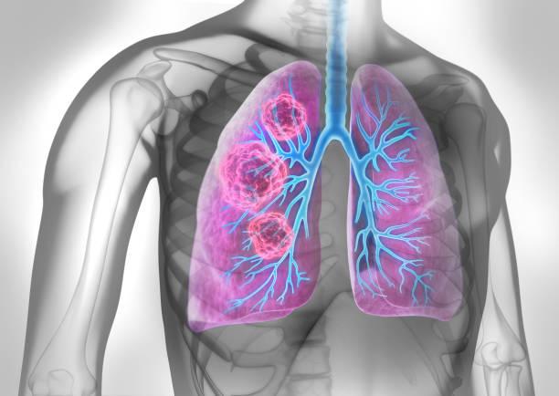 Cuerpo con tumor pulmonar - foto de stock