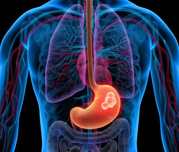 Cuerpo con tumor estomacal - foto de stock
