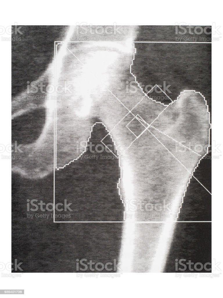 Bone density medical scan - hip. Osteoporosis diagnosis. stock photo