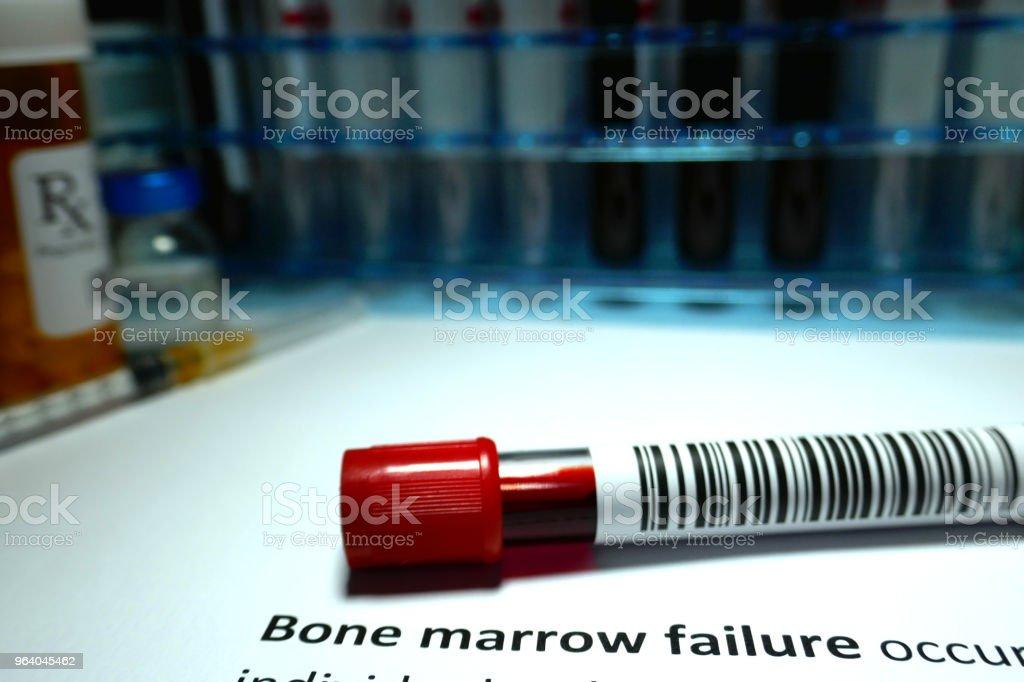 Bone marrow failure - Royalty-free Analyzing Stock Photo