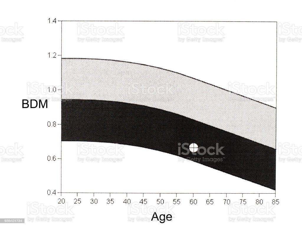 DEXA, bone mineral density graph. Osteopenia present. stock photo