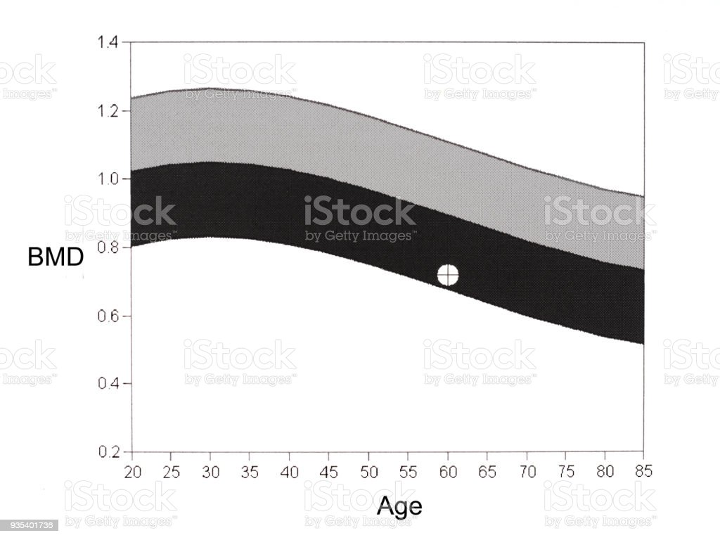 DEXA, bone mineral density graph. Osteoporosis diagnosis. stock photo