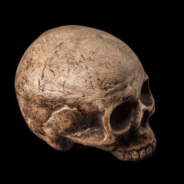 Royalty Free Human Skull Human Jaw Bone Human Bone Dead Person