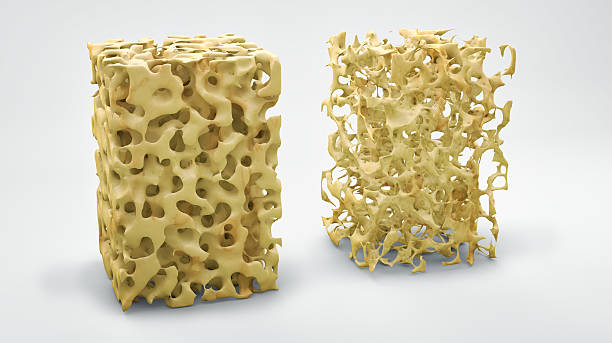 Bone structure 3d illustration, normal and with osteoporosis stock photo