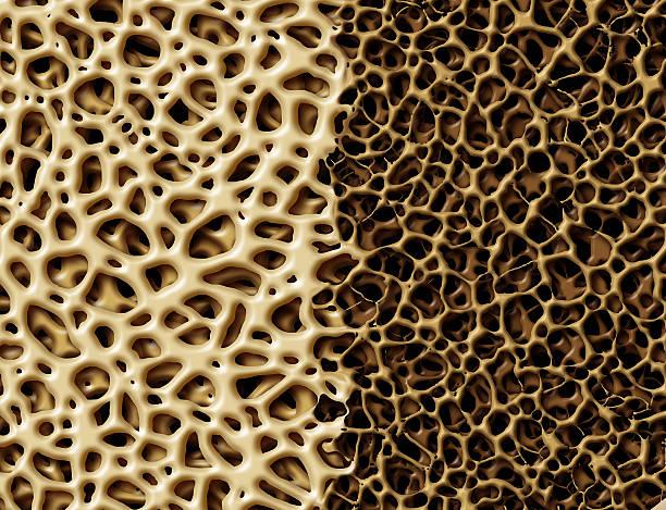osso con osteoperosis - osteoporosi foto e immagini stock