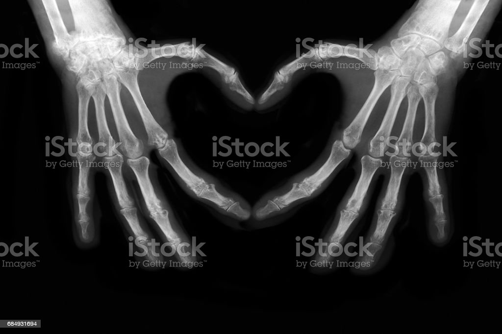 Bones of hands - foto de stock