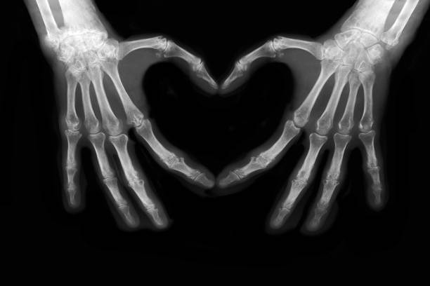 Bones of hands stock photo