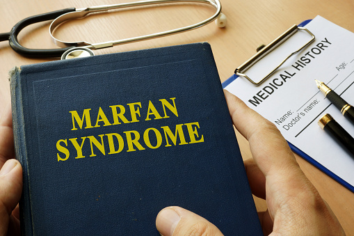 What Is Marfan Syndrome? And  What Are Marfan Syndrome Causes?