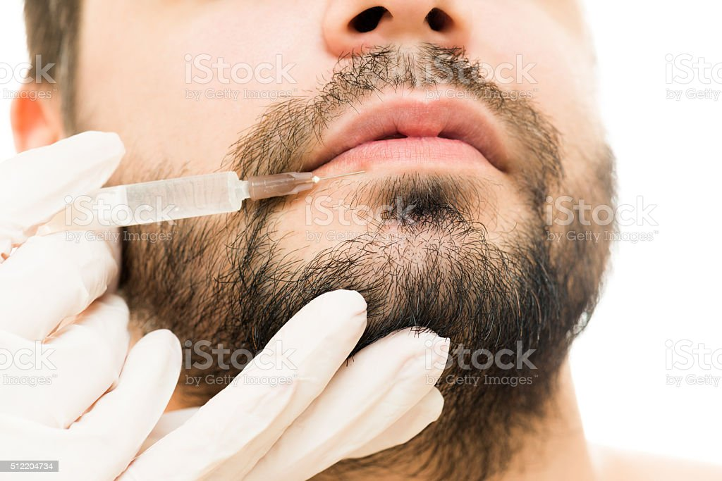 Botox in lips stock photo