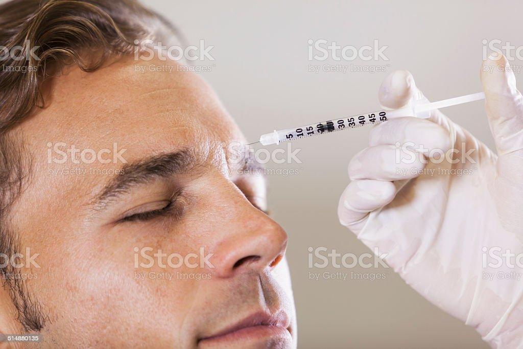 botulinum toxin bildbanksfoto