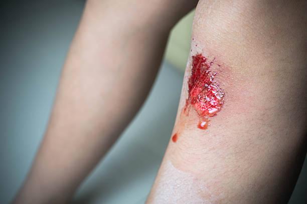 Garçon enfant avec sang blessure au genou - Photo