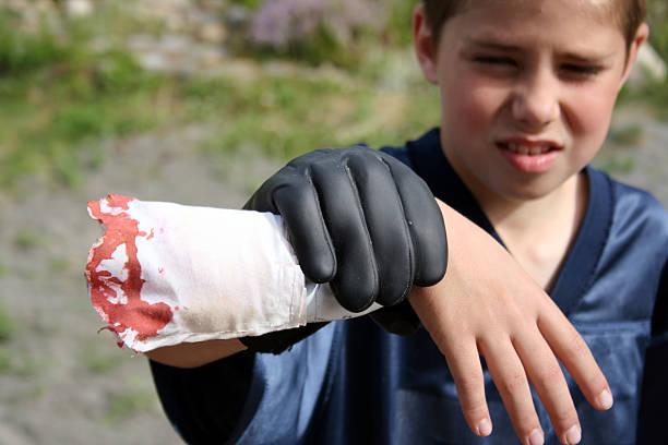 junge hält severed arm prop - zum totlachen stock-fotos und bilder