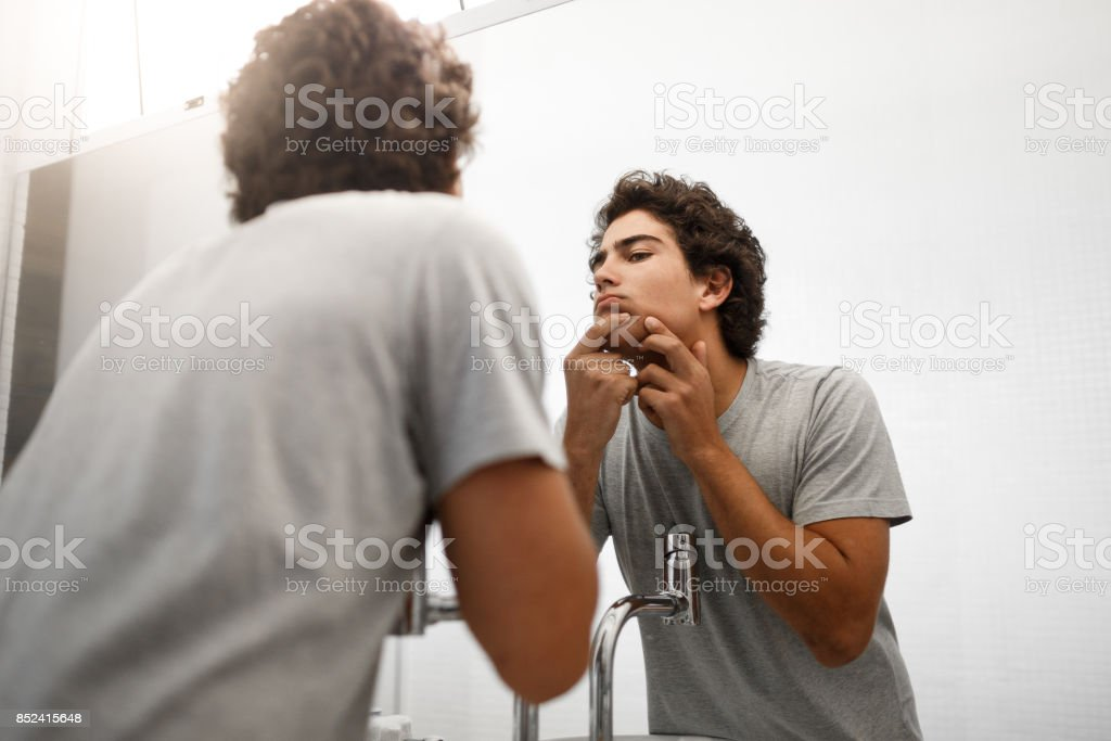 Boy squeezing pimple - foto stock