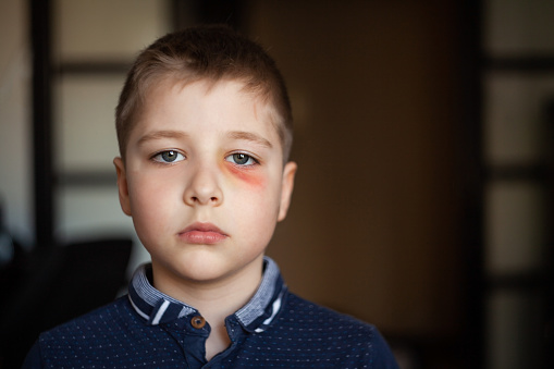 istock A boy with a black eye 954811964