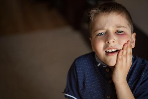 istock A boy with a black eye 956813900