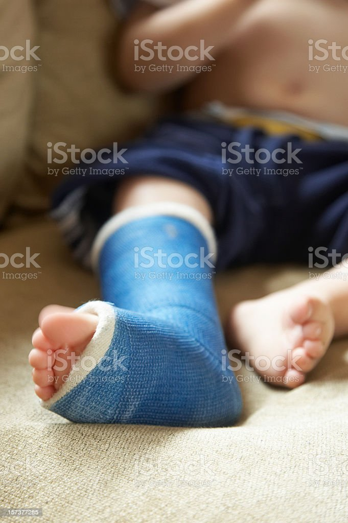 Boy with broken leg in cast stock photo