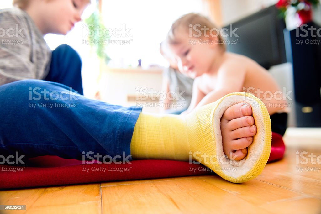 Boy with broken leg with his brother playing. photo libre de droits