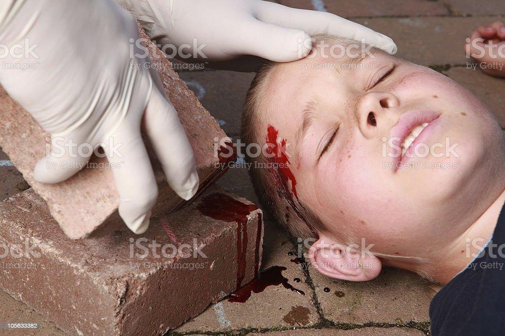 Boy with head injury royalty-free stock photo
