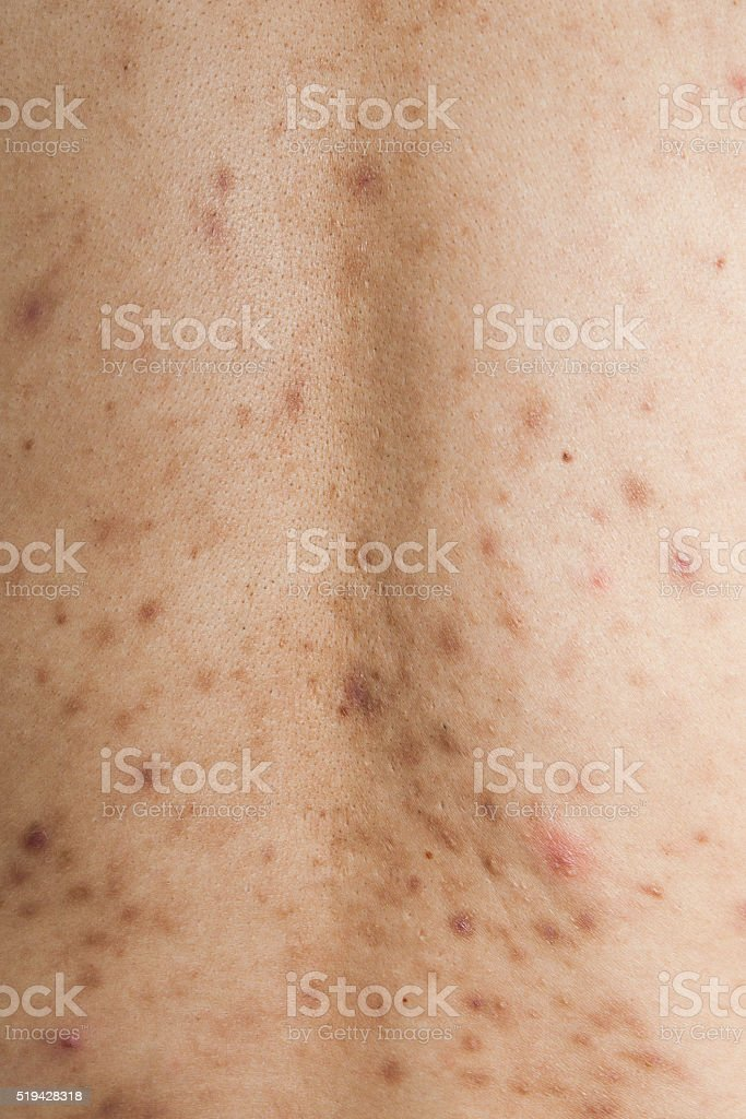 Boy with problematic skin and acne scars in the back stock photo