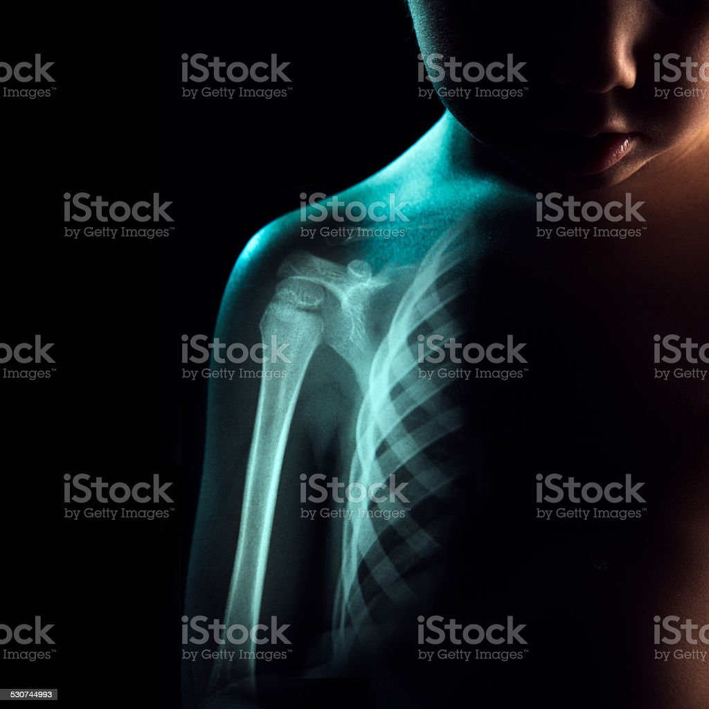 Boy with Visible Skeleton X-Ray stock photo