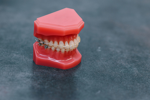 A photo of a dental jaw model with braces.