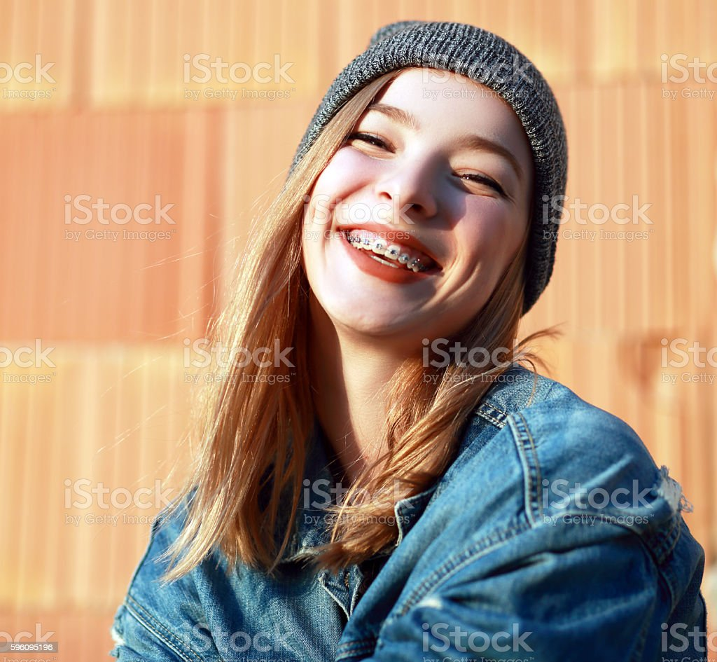 braces on her teeth royalty-free stock photo