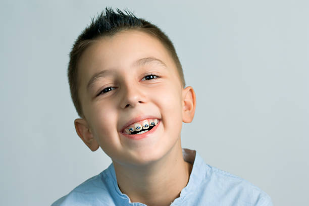 braces stock photo