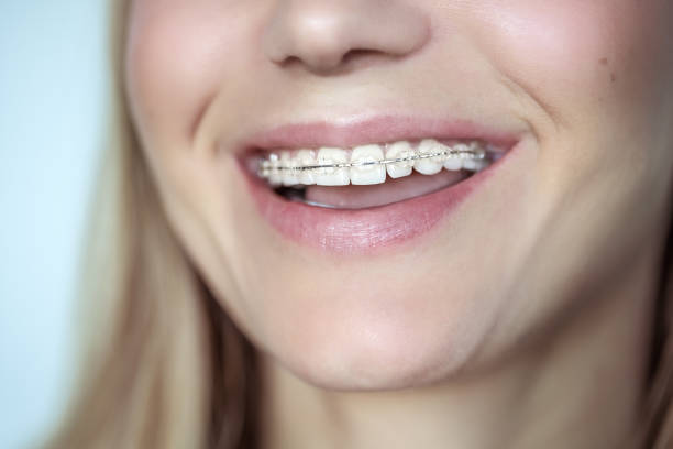 Braces, treatment for a crooked teeth Braces, treatment for a crooked teeth, closeup photo of a beautiful smile of a young woman with white clean teeth, aesthetic dentistry and dental care concept ceramics stock pictures, royalty-free photos & images