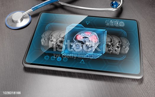 Modern medical tablet displaying scan of brain activity