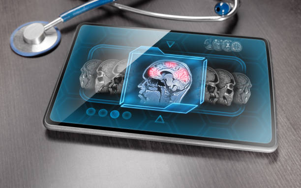 Brain activity Modern medical tablet displaying scan of brain activity neuroscience patient stock pictures, royalty-free photos & images