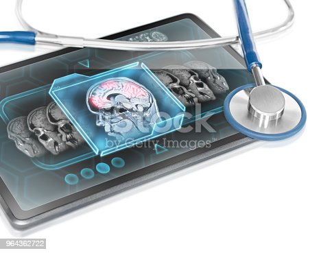 Modern medical tablet displaying scan of cerebral activity