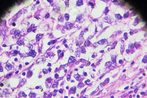 istock Brain astrocytoma under microscopy 908189452