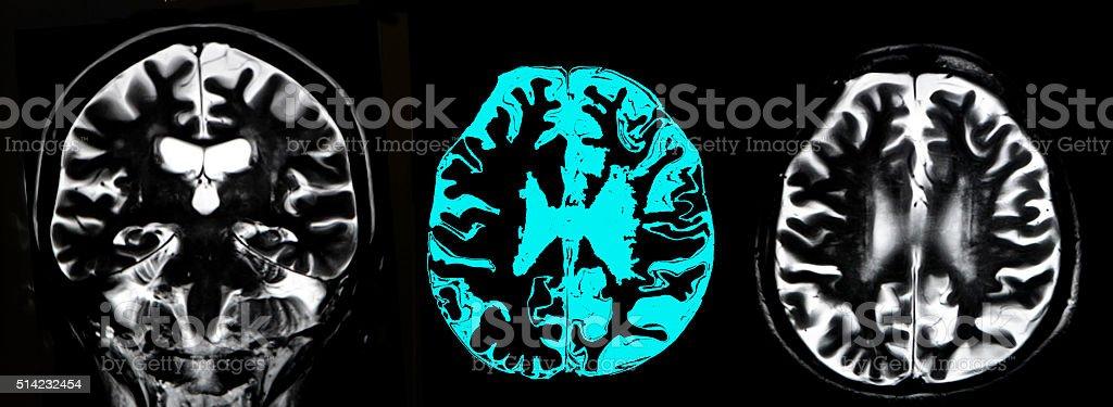 Brain atrophy, MRI stock photo