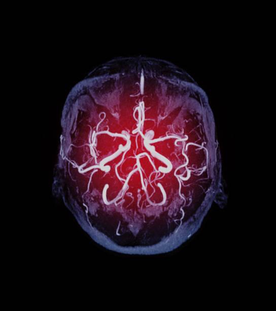 MRA Gehirn axiale MIP-Ansicht zeigt Vessel im Gehirnnamen ist Kreis von Willis. – Foto