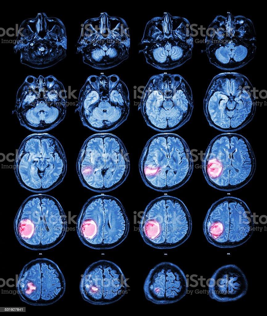 MRI brain : Brain tumor at right parietal lobe stock photo