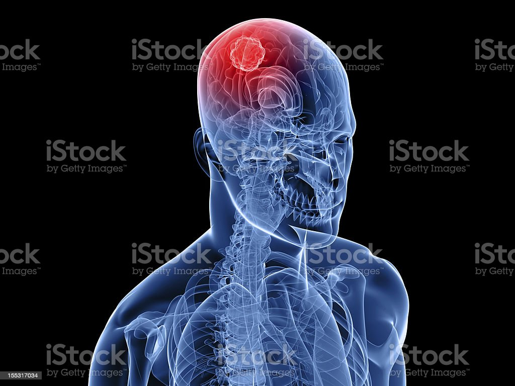 brain cancer royalty-free stock photo
