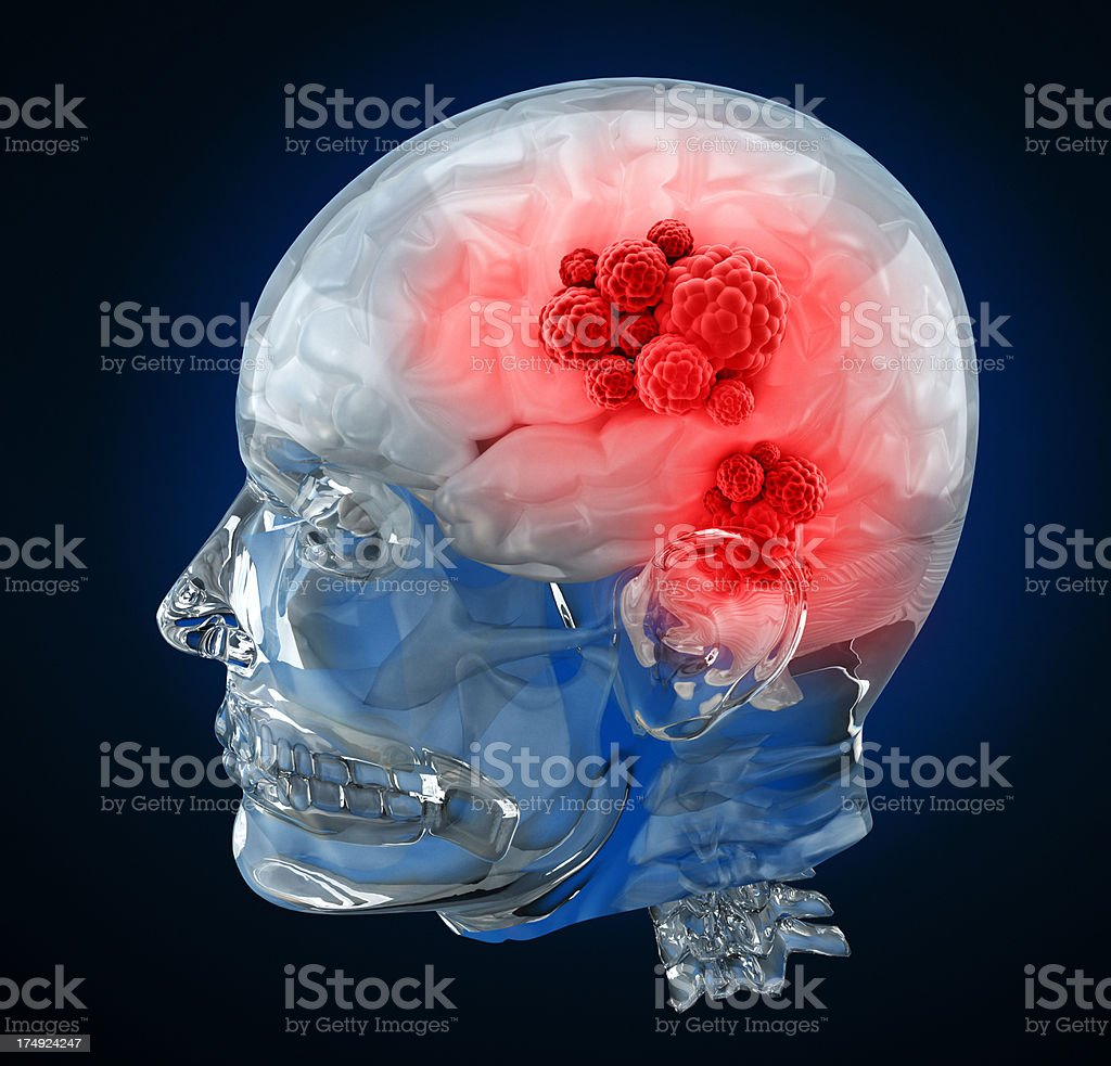 Brain cancer stock photo