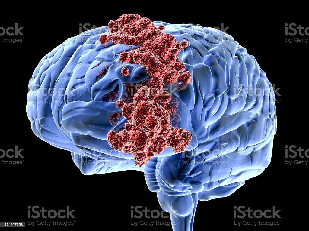 Brain cancer stock photo